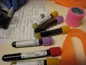 Qué significa tener el colesterol HDL alto