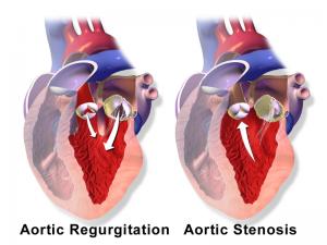Blausen_0041_AorticValve_RegurgitationvsStenosis