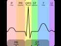 Qué es un electrocardiograma normal: interpretación