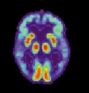 Hipercolesterolemia y enfermedad de Alzheimer