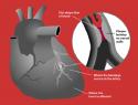 Por qué el colesterol alto produce infartos