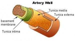 Ateroesclerosis como consecuencia de colesterol alto