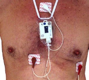Monitor Holter