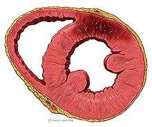 Síntomas de un infarto al corazón
