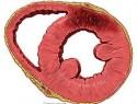 ¿Qué es un infarto de miocardio?