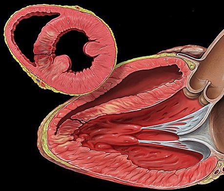 ¿Qué es una angina de pecho?