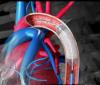 Stent coronario: qué es y para qué sirve un stent en el corazón